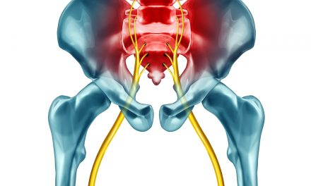 Unveiling The Mysteries All About Sciatica