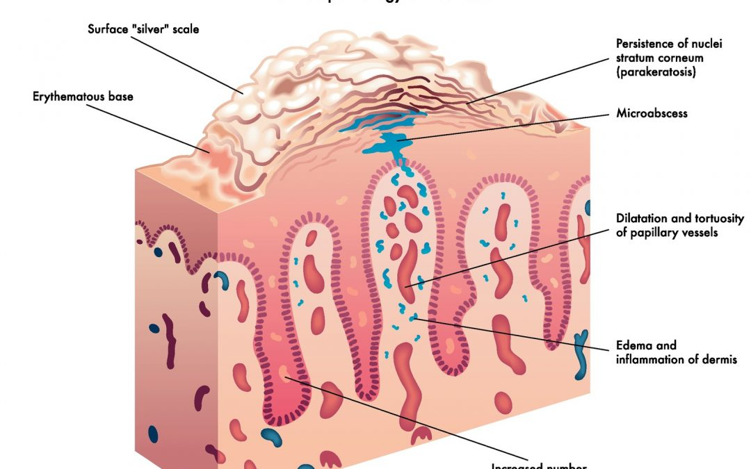 How To Get Rid Of Psoriasis