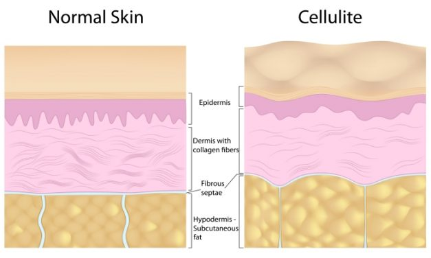 Natural Ways To Get Rid Of Cellulite