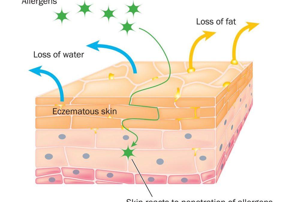Eczema Explained