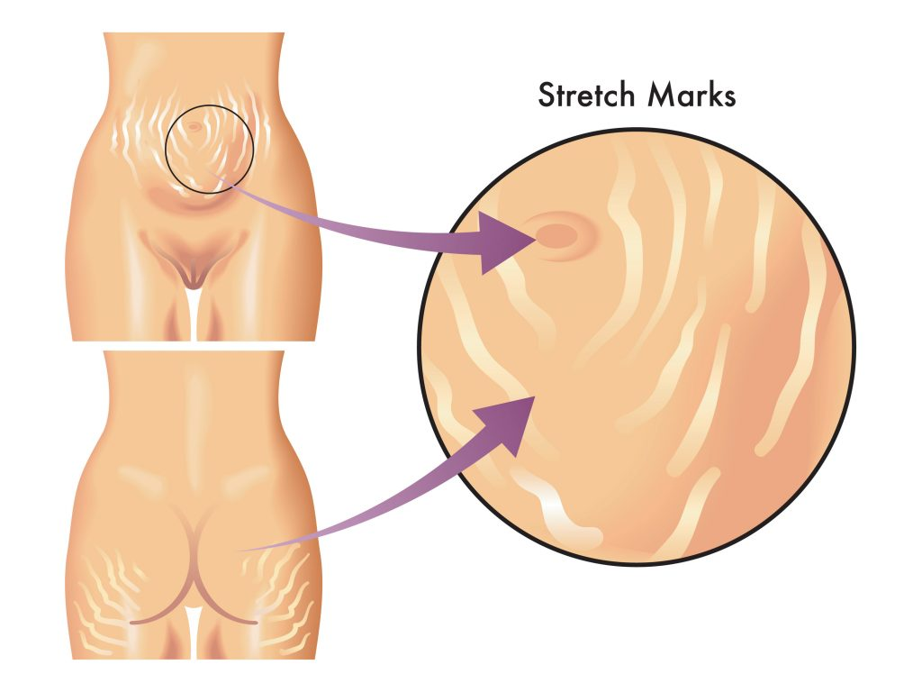 Natural Ways To Get Rid Of Stretch Marks