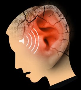 Tinnitus - All You Need To Know About The Ringing In Your Ears