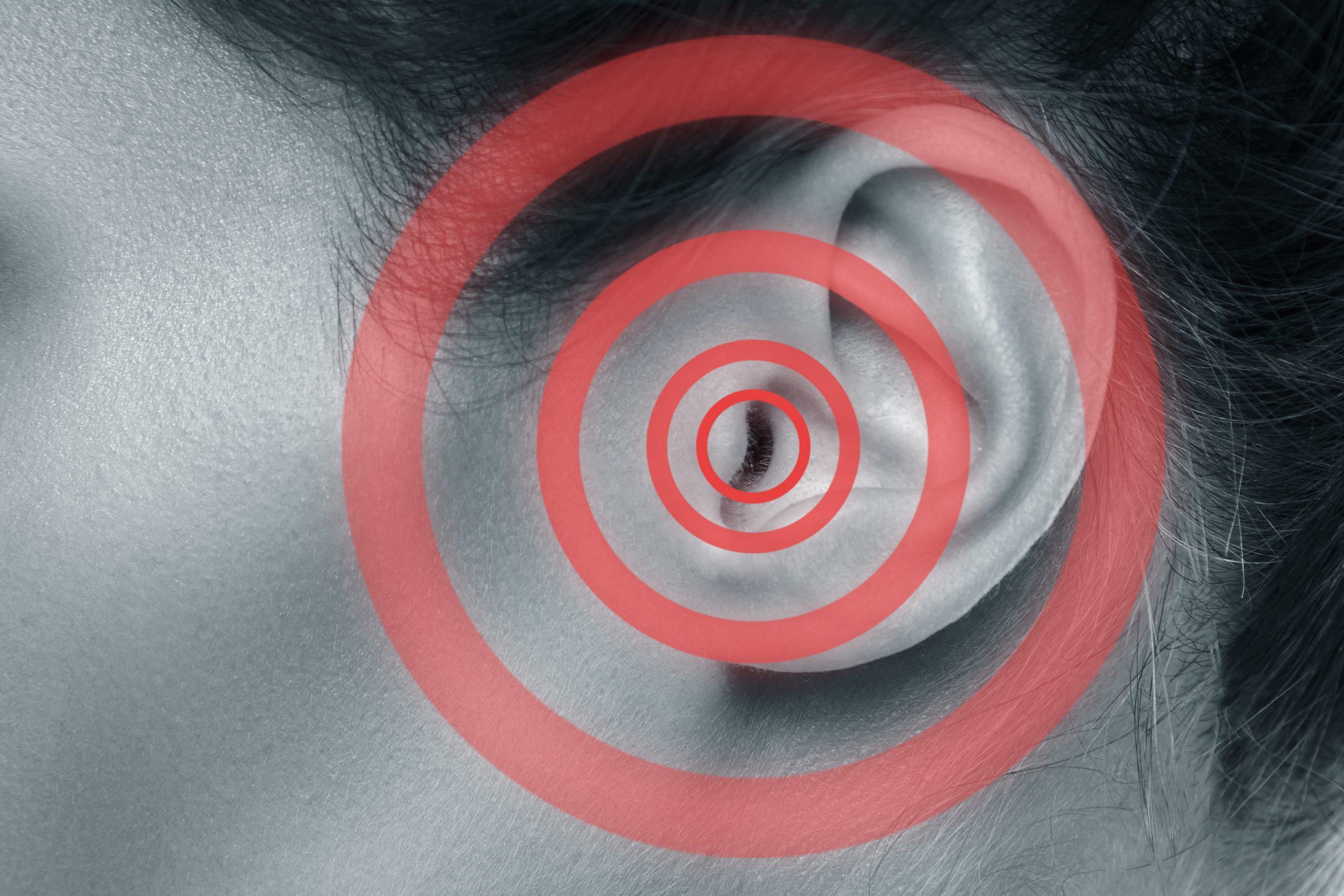 10 Tips To Help Manage Tinnitus
