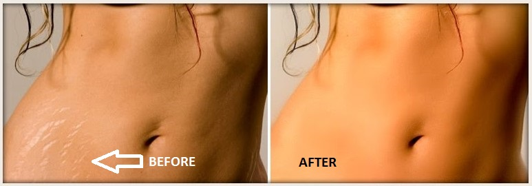 Skinception Intensive Stretch Mark Therapy Review
