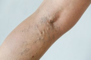 How To Get Rid Of Varicose Veins And Spider Veins